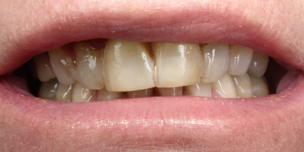 Picture of teeth before crowns