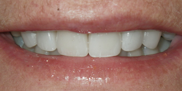 Picture of teeth after crowns