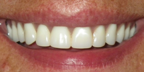 Picture of teeth after dentures