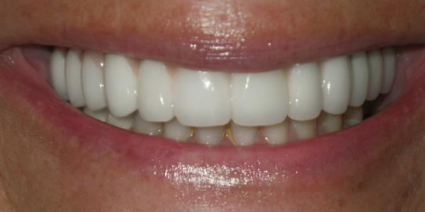 Picture of teeth after implants