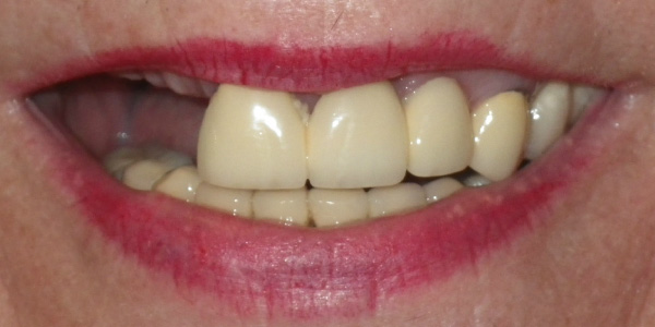 Picture of teeth before implants