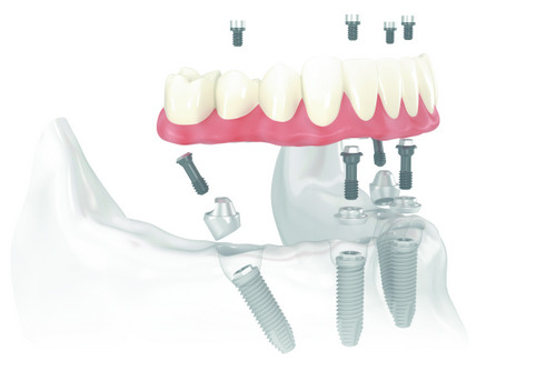 Diagram of All-on-4 Treatment Concept at Julie A. Phillips, DDS, MS